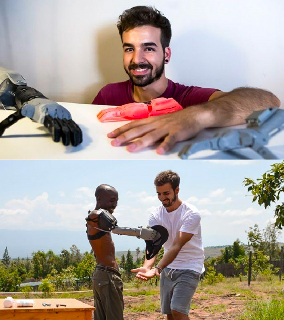 3D-Printed Prosthetic Limbs