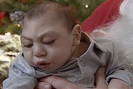 Baby Ohne Gehirn