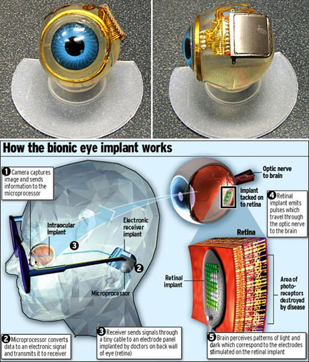 Functional Bionic Eye