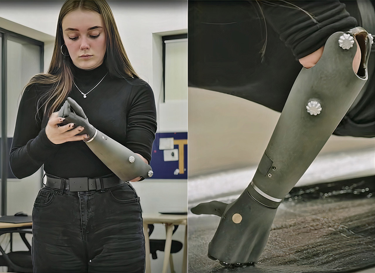 Esper Bionics Nika Myoelectric Hand Prosthesis