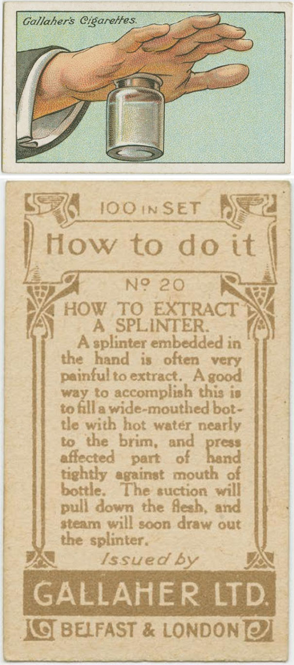 How to Extract a Splinter