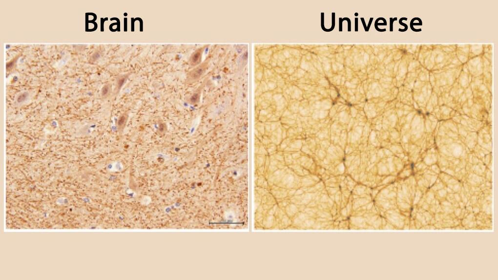 Human Brain vs Universe