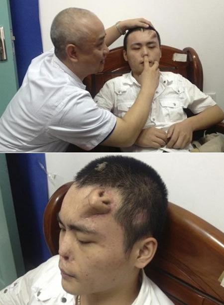 Chinois homme nez de dommages dans l'Accident, médecins développer un nouveau sur le front