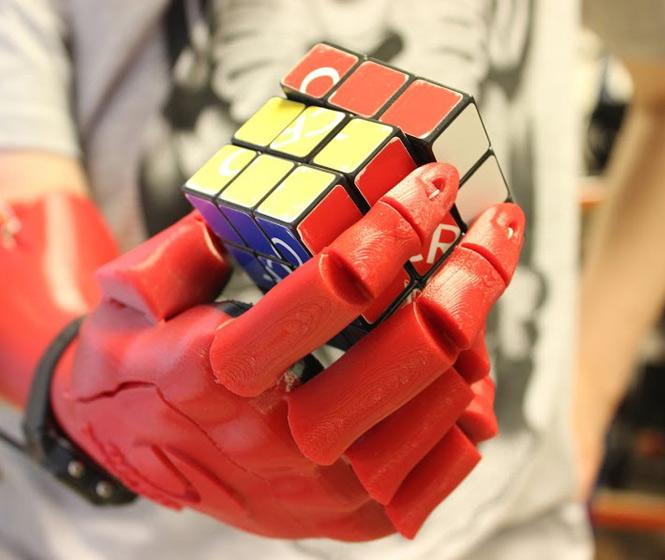 Open Bionics 3D-Printed Hand