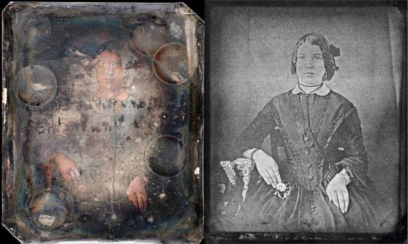 X-Ray Photo Restoration